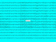 193px-Elektroenzaphalogramm_14_alpha